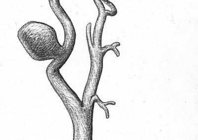 Carotid aneurysm-Dr. Raab
