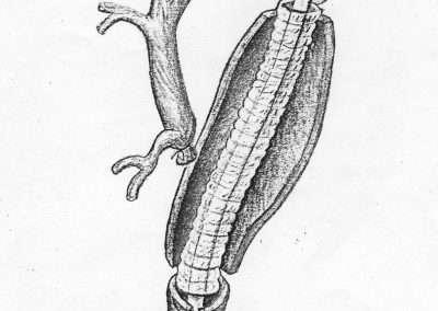 Dacron tube 2B